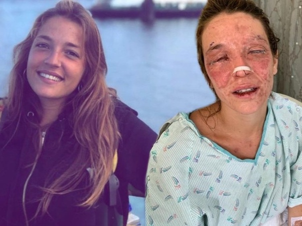 Глаза, которыми не прочесть посты Кустоди. 24-летняя испанка Марта Бустос, ныне проживающая в американском Сиэтле, то ли наносила, то ли изготавливала домашнюю косметику, когда умудрилась