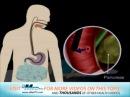 ERCP Procedure