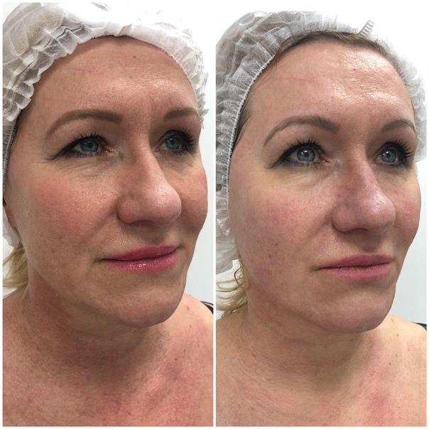 Тиогамма в косметологии фото до и после