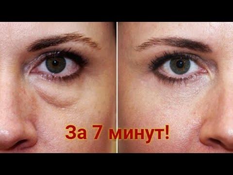 МЕШКИ и ОТЕКИ под глазами Как убрать отеки под глазами Рецепт Малярные мешки и отеки 2