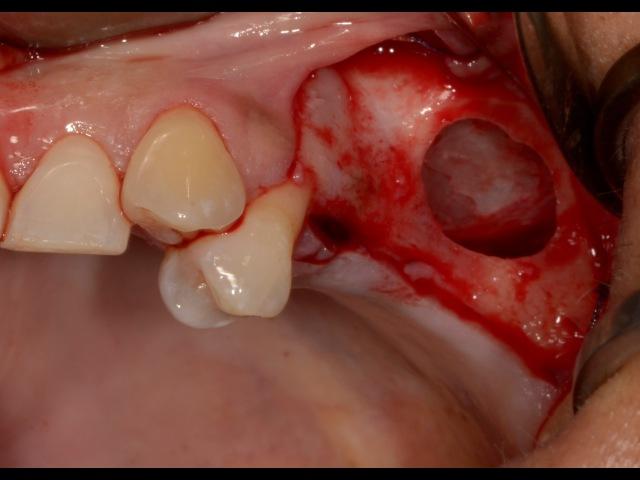 Sinus Lift Surgery DASK Piezosurgery PRGF BioOss Bioguide Dr Kuljeet MEHTA Periodontist