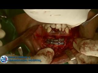 Лечение множественных переломов челюстно - лицевой обл. Хирургическая стоматология.