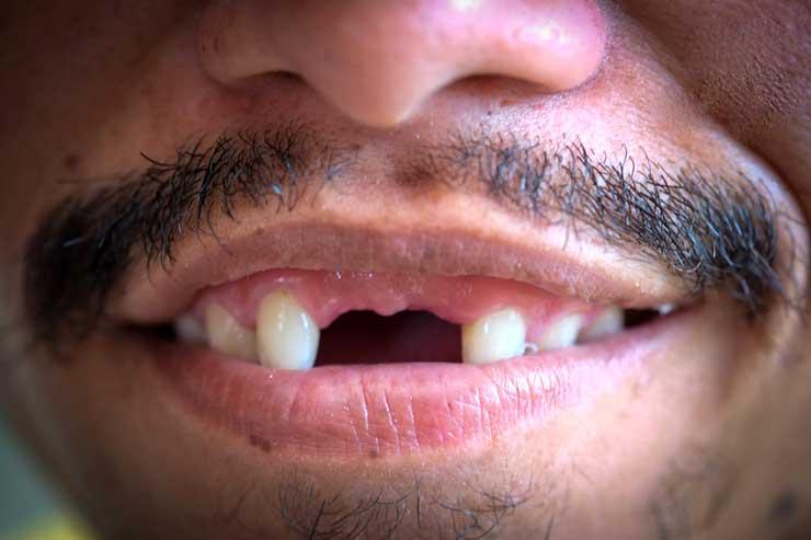Оральные импланты обеспечивают эффективную замену людям, которые потеряли зуб из-за заболевания десен