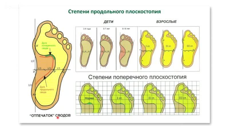 Занятие № 1 - Системный подход к коррекции плоскостопия