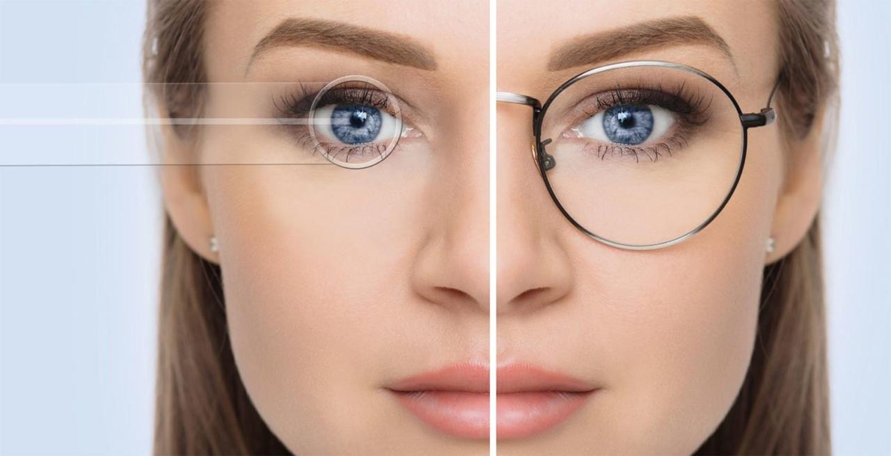 Плюсы лазерной коррекции зрения огромны