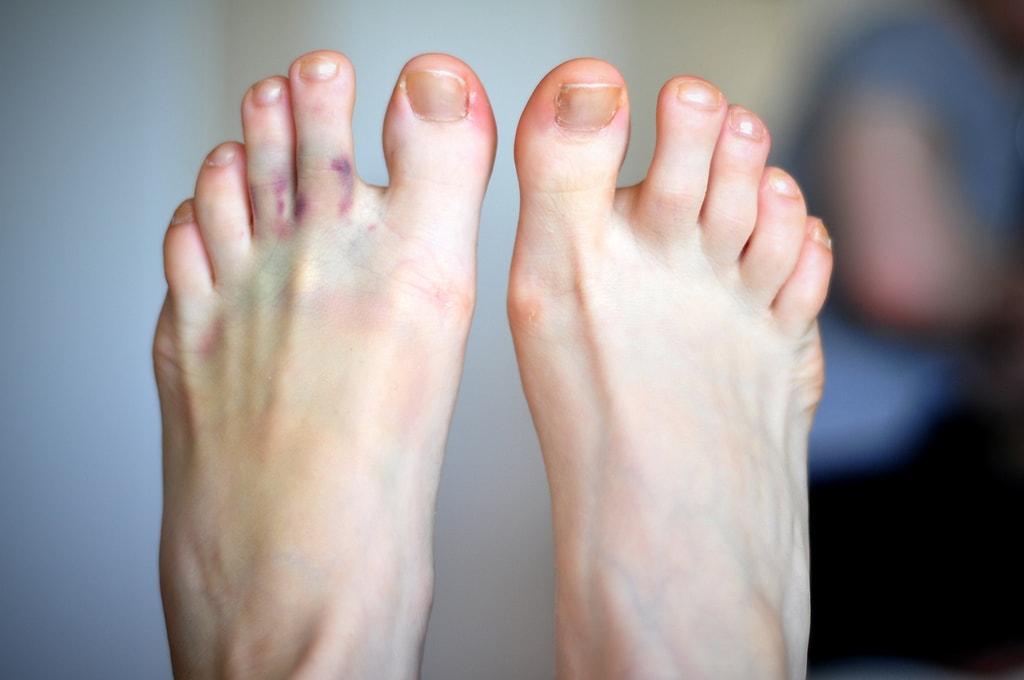 Как лечить боль в пальце ноги?