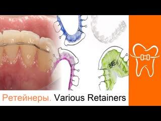 Ретейнеры. ортодонтия. various orthodontic retainers #1