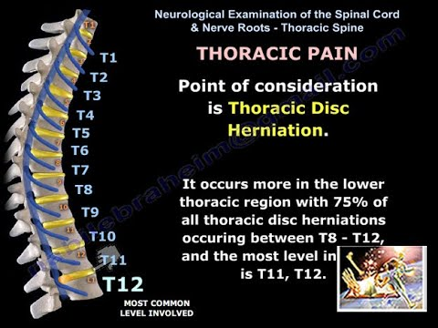 Neurological Evaluation Of The Thoracic Nerves Everything You Need To Know Dr Nabil Ebraheim
