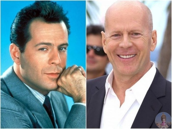 Знаменитые актеры до того, как они стали лысыми.