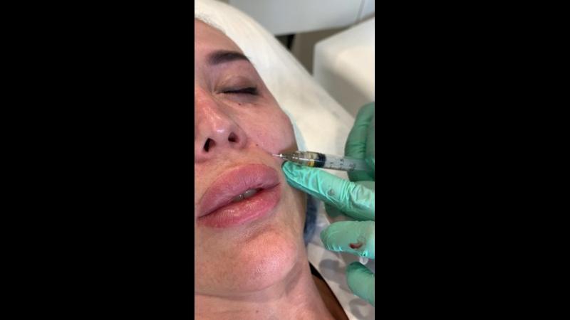Видео от MY clinic Ялта