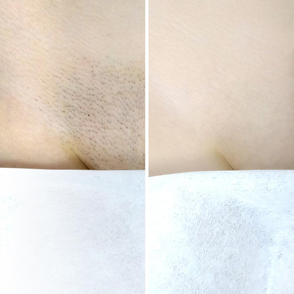 Это не Фотошоп, это твоя кожа, гладкая как шелк.